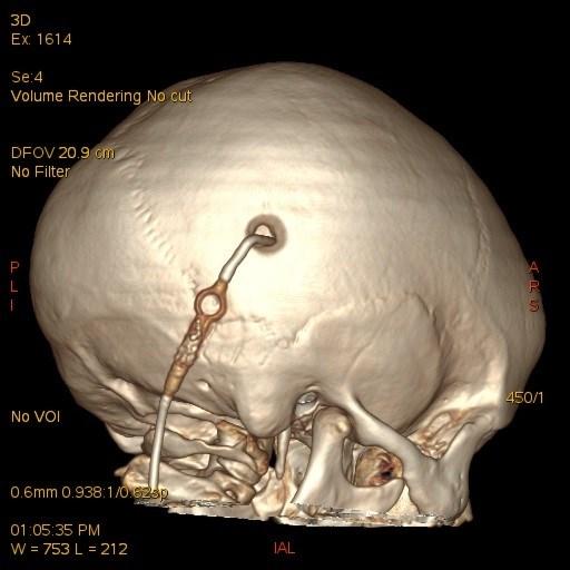 Артроз коленного сустава лечение желатином отзывы